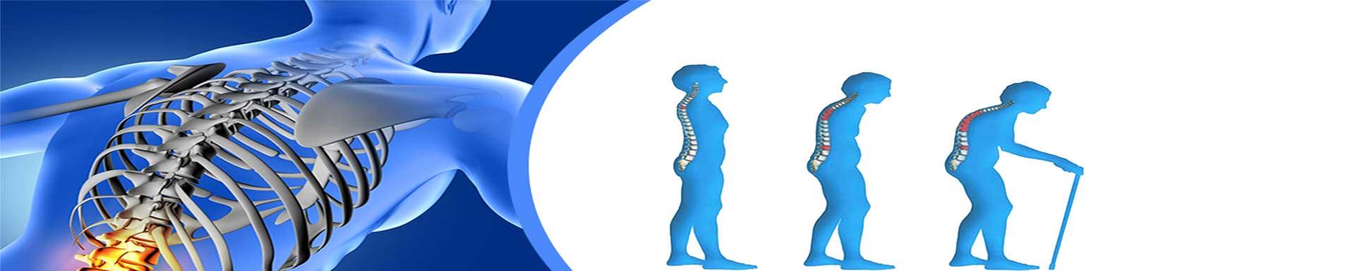 osteoporosis en personas