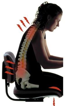 cifosis postural